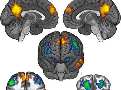 cerveau politique copie
